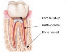 anatomy of tooth 2